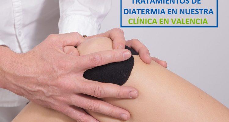 Tratamiento de diatermia en tu clínica en Valencia