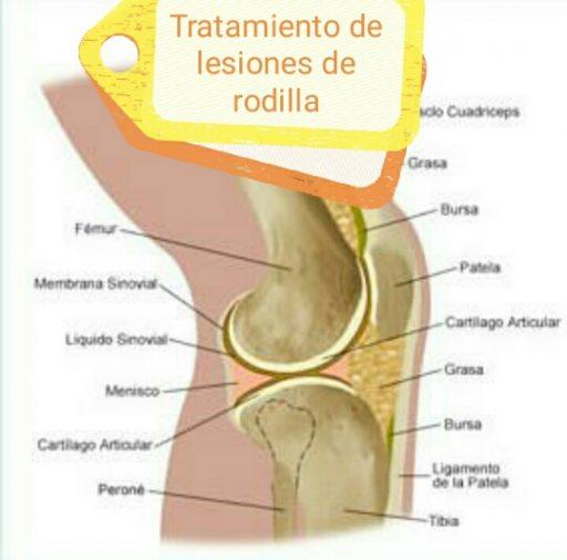 tratamiento de lesiones de rodilla