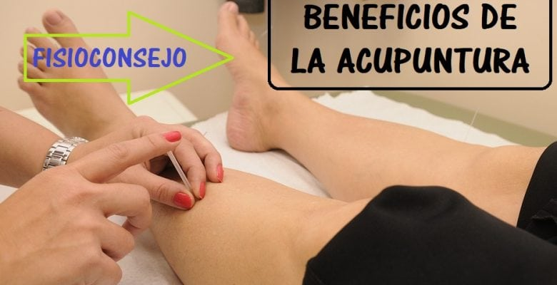 beneficios de la acupuntura